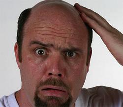 男性性脱毛症
